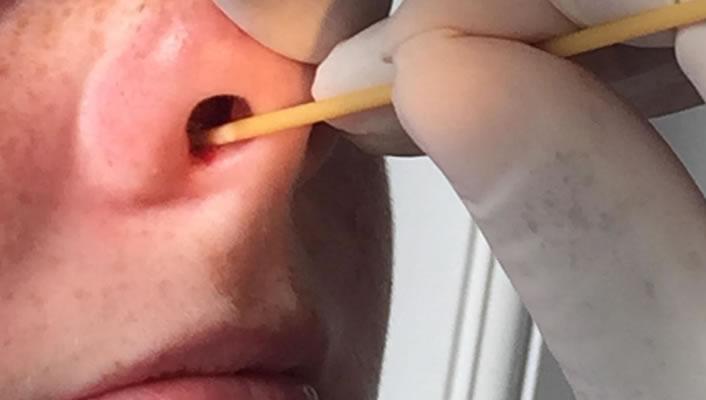 Nosebleeds in Children